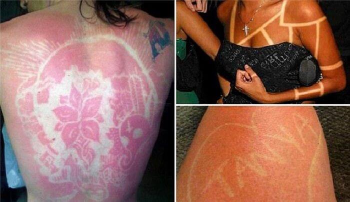 Sunburn art, coup de soleil